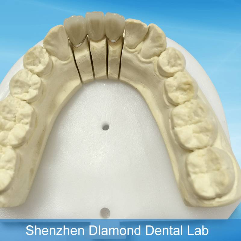 Denture Making PFM non-precious Ni-Cr alloy porcelain teeth supplies