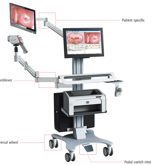 Colposcope Medical Equipment Video Colposcope Gynaecology Diagnosis