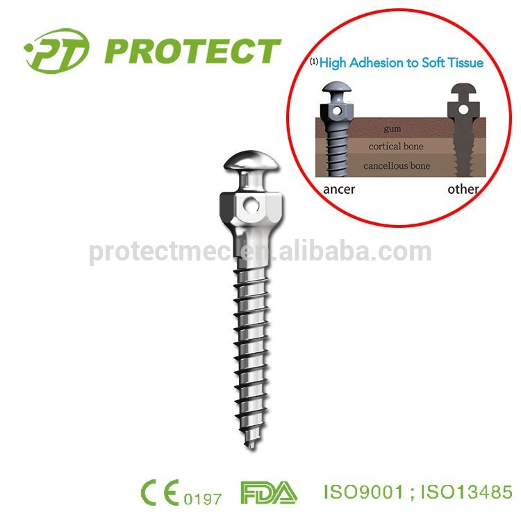 Dental Orthodontics implant Mini screws systems