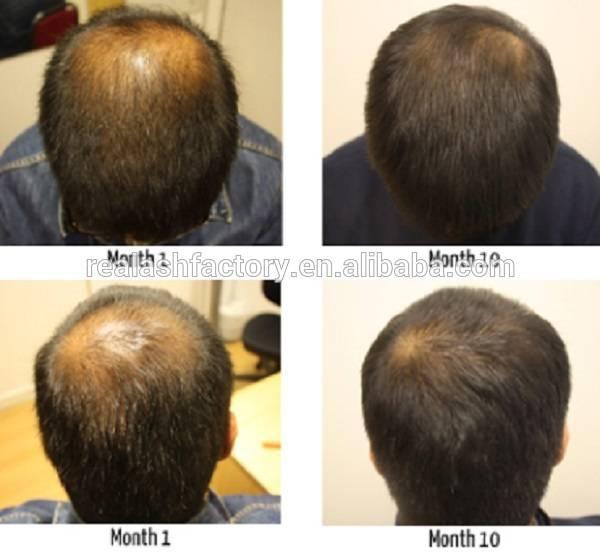 Best Hair Treatment oil For Damaged Hair Protein Treatment YUDA Hair Growth Spray