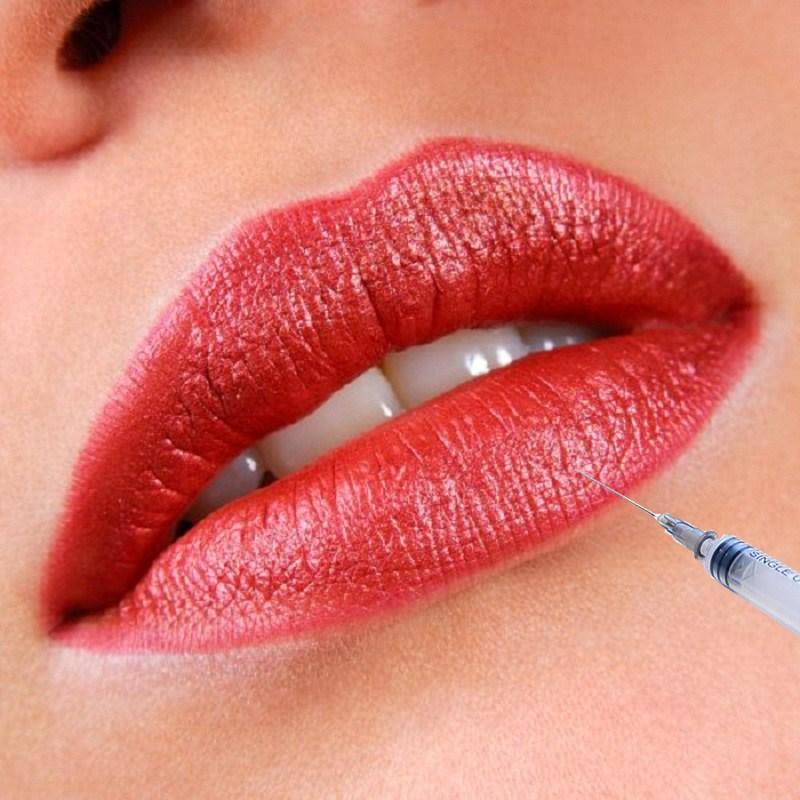 Hyaluronic Acid Filler for Sexy and Fuller Lips