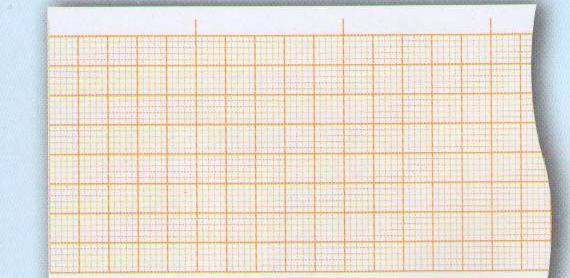 One-Conduct Electrocardiograph Paper-50mmX20m