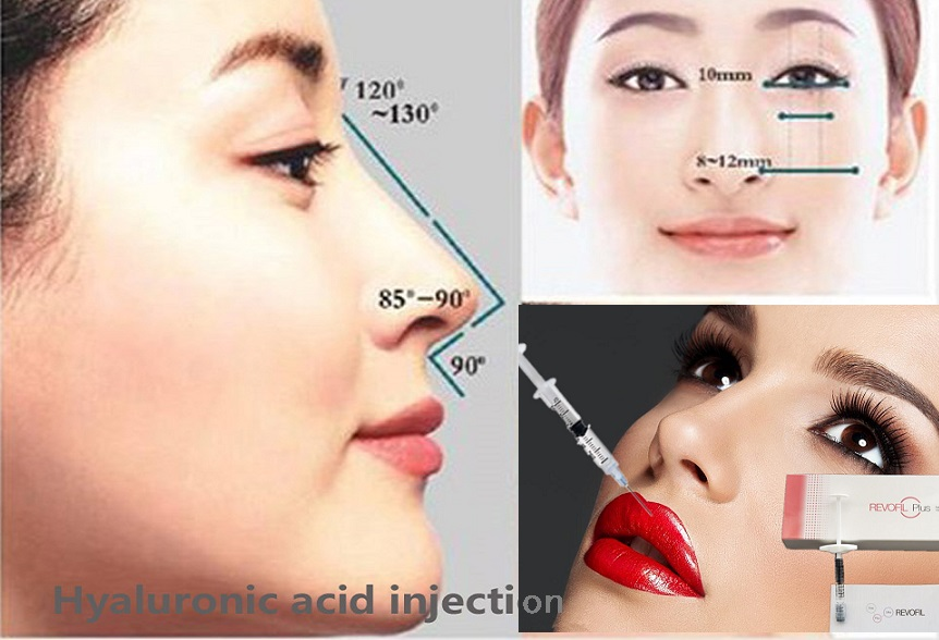 1ml Micro Cosmetic Surgery Reshape Nose And Jawline enhancement Dermal Fillers