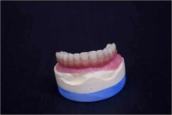 Implant Porcelain Teeth