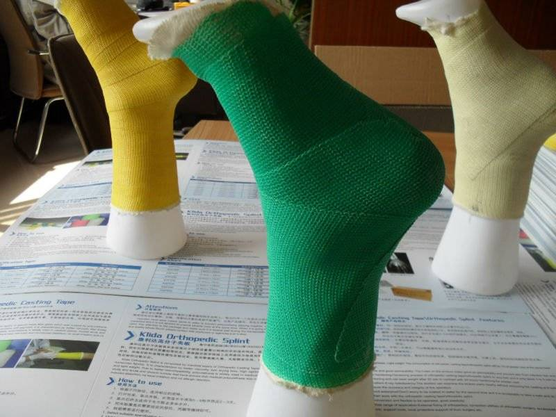 Medical Orthopedic Fiberglass Casting Tape Bandage