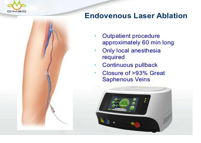 Small Size Endovenous Laser Therapy Treatment For Varicose Veins In Legs