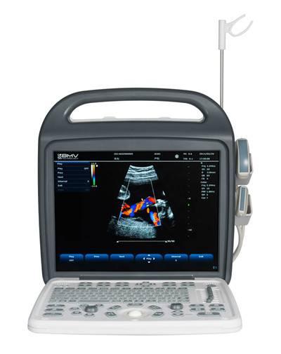 (BCU-30) Portable Color Doppler Ultrasound Scanner