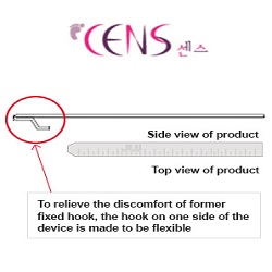 CENS (Ingrown toe nail)