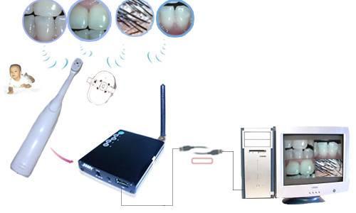 Wireless dental camera, Intra-oral camera ( dental camera),Mini dental camera
