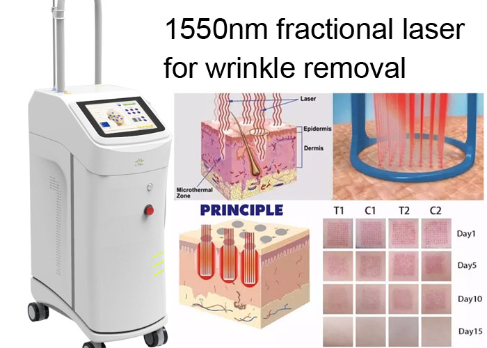 Non Ablative Wrinkle Laser Machine With 1550nm Erbium Glass Fractional Laser Technology