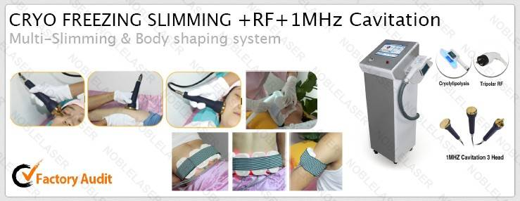 cryolipolysis+RF+1Mcavitation