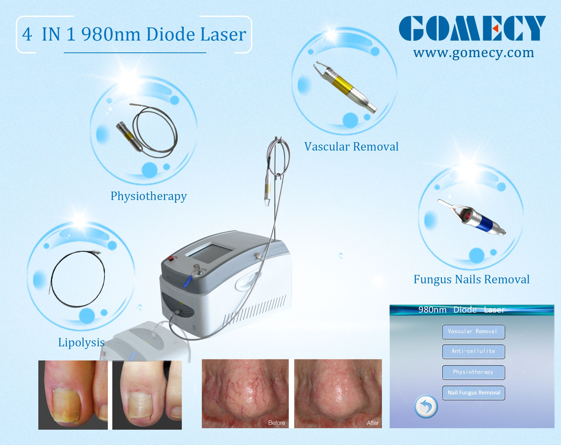 4 in 1 980nm diode laser vascular spider vein removal physical therapy slimming machine