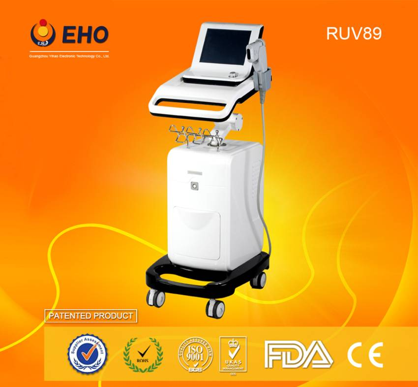 2015 Italy technology!Wrinkle remover RUV89 high intensive ultrasound hifu machine