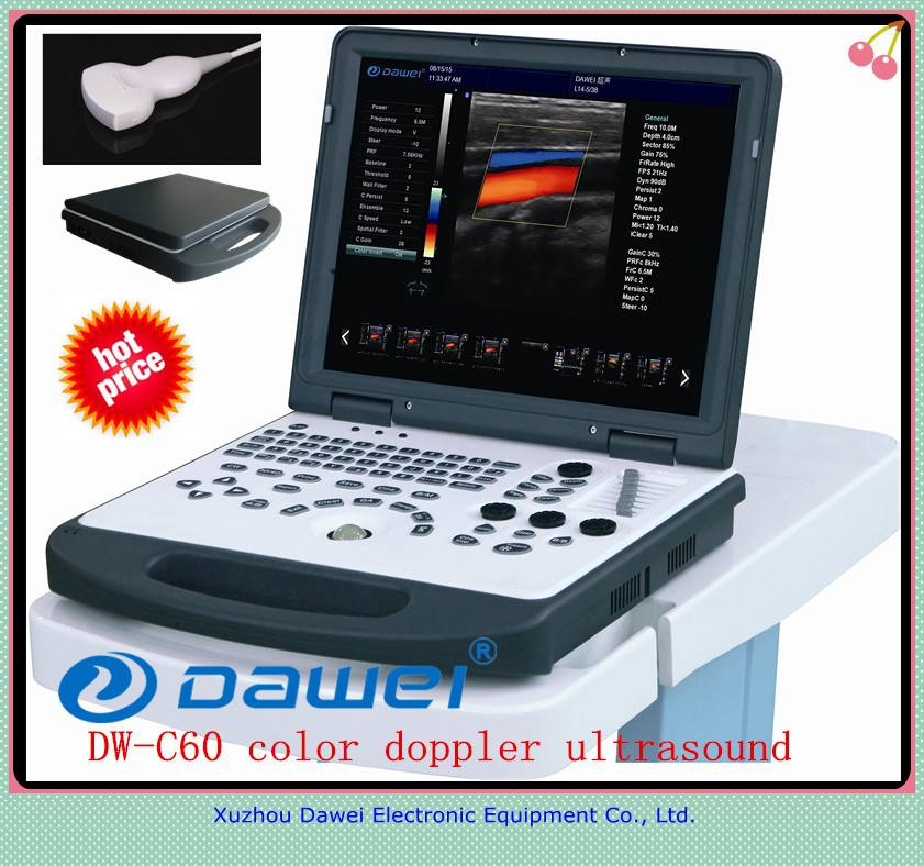 3d ultrasound machine price for DW-C60 laptop ultrasound machine color doppler