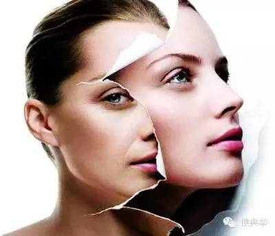 Pure Cross Linked Hyaluronic Acid Filler /Dermal Filler for Face