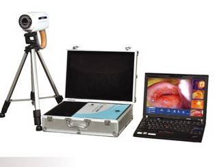 TR6000B Laptop portable Digital Electronic Colposcope