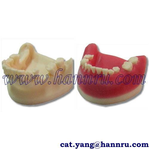 Dental model POS-03 GBR Practice Model - Hann Ru