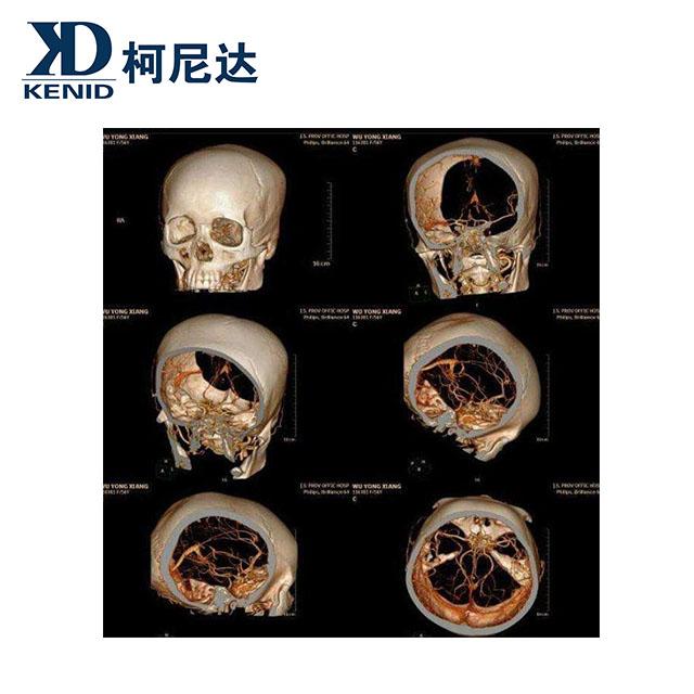 digital film scanner,film digitizer,dental digital x-ray film