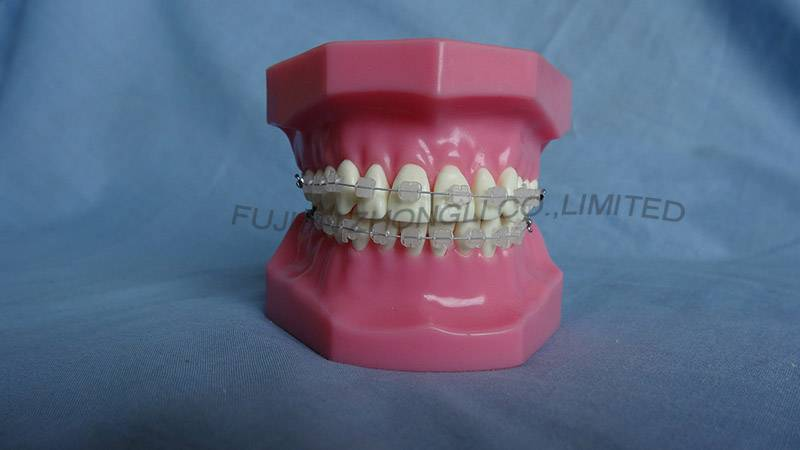 Orthodontic Teeth Model