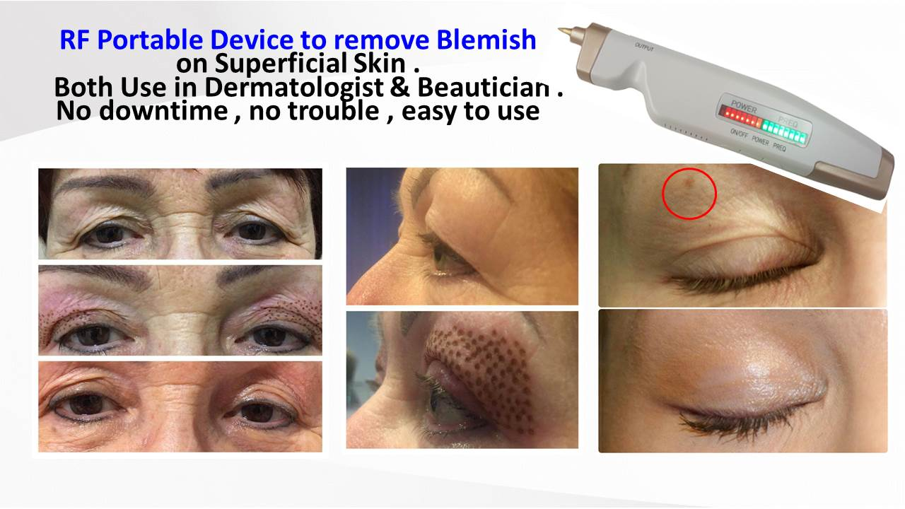 Dermatology : Portable RF Beauty Device to delete Blemish