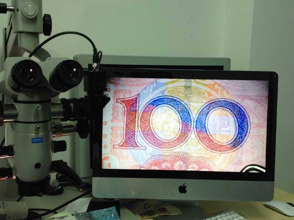 HD Video Recording System for Surgical Operation Microscope