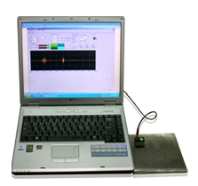Ultrasound Portable (UP1000)