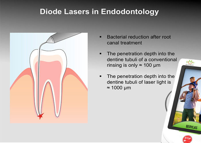 BERYLAS Diode Laser Dental Cuts Through Bone Gums And Any Other Tissues
