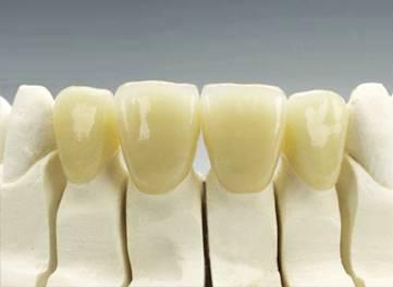 Dental Zirconia Crown/Bridge
