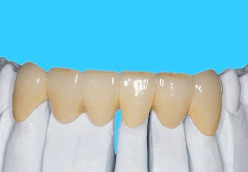 Gold palladium Alloy Ceramic teeth