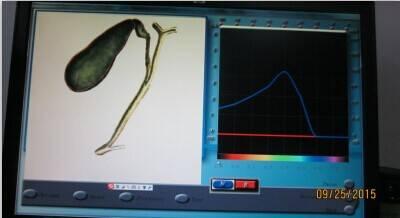 The most Perfect Original 3D NLS Health Analyzer, whole body health analyzer 3D NLS