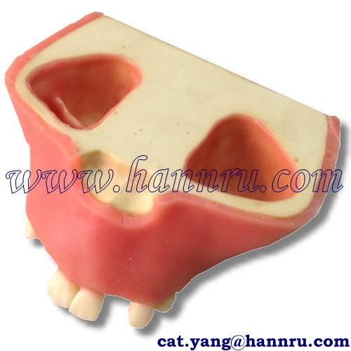Dental model PIM-13 Sinus Lift Implant Insertion Model - Hann Ru