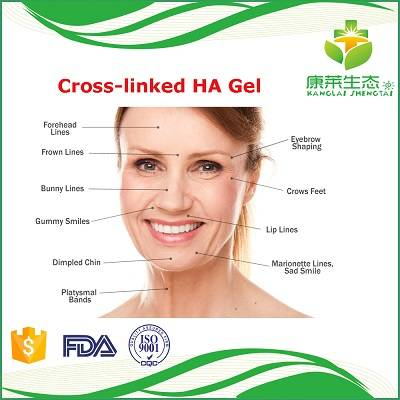 Hyaluronic Acid Dermal Filler Injection with 1ml/2ml Syringe