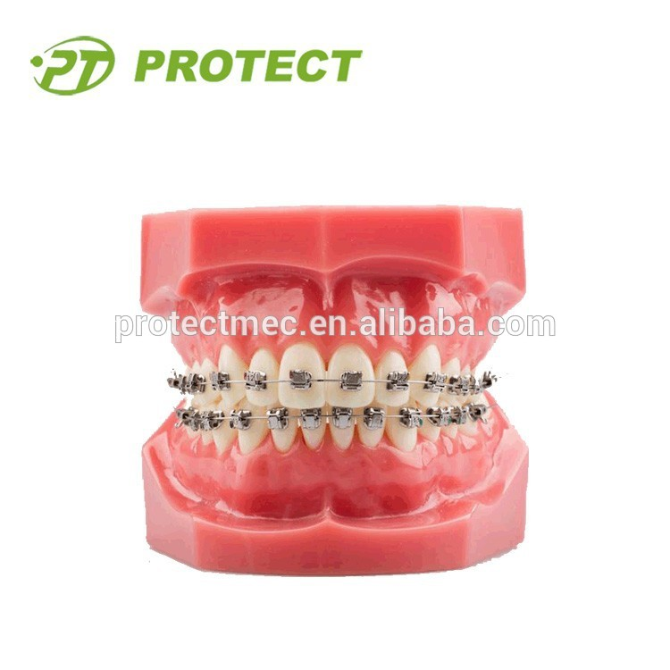 orthodontic teeth mold with self ligating roth metal brackets