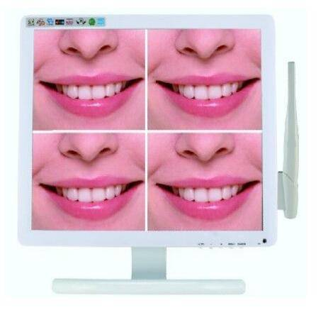 VGA / TV / AV 3 In 1 Intra Oral Camera With 17 Inch LCD Monitor