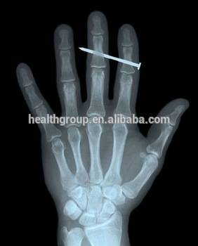 Professional Thermal Medical Film/CT Scanner Film/medical x-ray Films