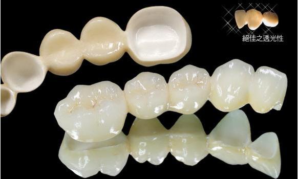 Cobalt Chromium Alloy ceramic teeth
