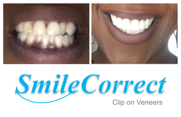 dental clip on veneer from China dental lab