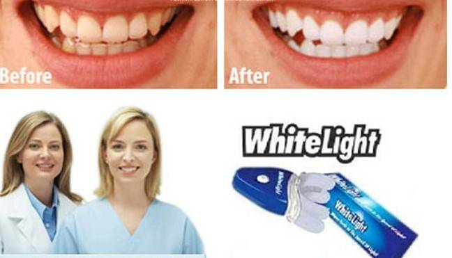 The Best Selling Teeth Whitening Kit-Whitelight Teeth Whiten,Results In Just 10mins