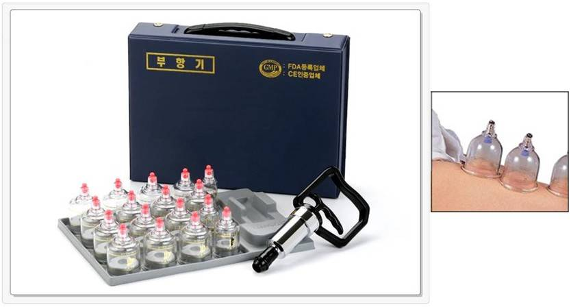 Cupping set(17cups)