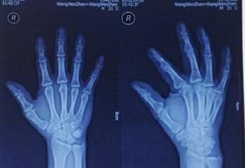 Fuji Safe X RAY Dental Unit x ray film for health care