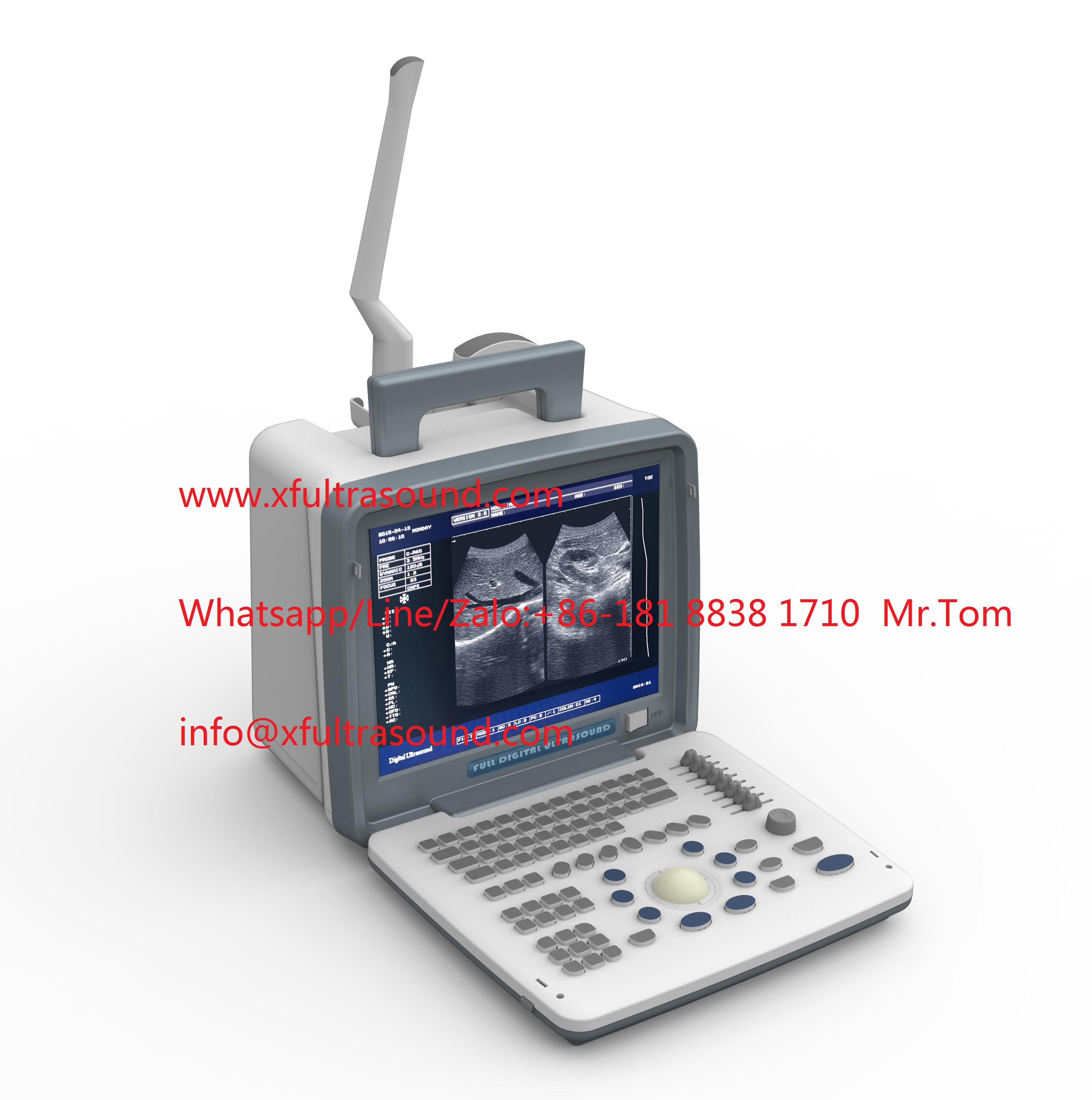 B&W Portable Ultrasound Scanner XF300 LED