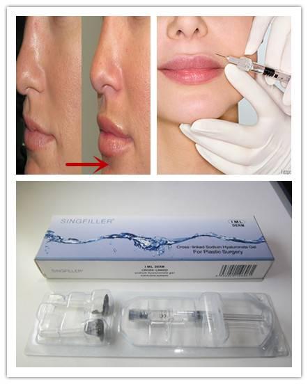 2016 hot sale Cross-linked Hyaluron Acid injectable HA Dermal Filler For Lip augmentation