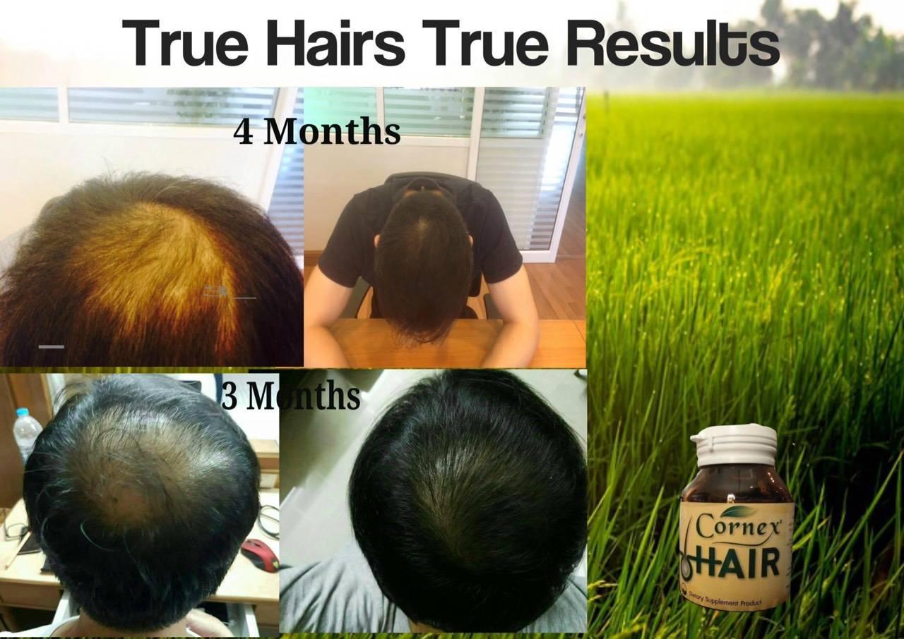 Hair Growth Product