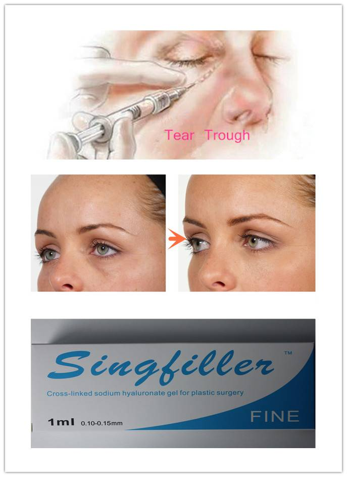 Cross Linked Hyaluronic Acid Filler Supplier for fine lines