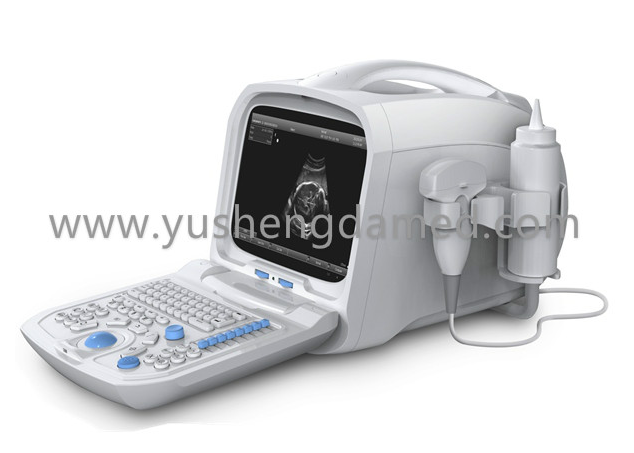 Medical Equipment PC Based Digital Portable Ultrasound Ysd1206