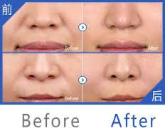 HA Filler Dermal Filler 100%Pure Cross Linked Hyaluronic Acid For Medium Line