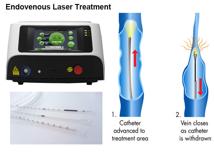 Varicose Veins Endovenous Laser Therapy / Treatment / Ablation 980nm Wavelength