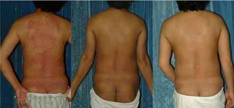 Portable handheld Narrow band UVB Hand held lamp - Psoriasis, Vitiligo, Eczema, Skin disease