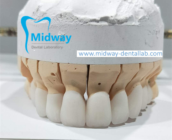 dental zirconia crown from China dental lab