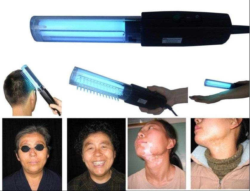 portable home use vitiligo psoriasis eczema treatment lamp
